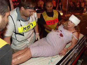 http://bokertov.typepad.com/photos/uncategorized/2008/09/14/taba_bombing_pregnant_survivor.jpg